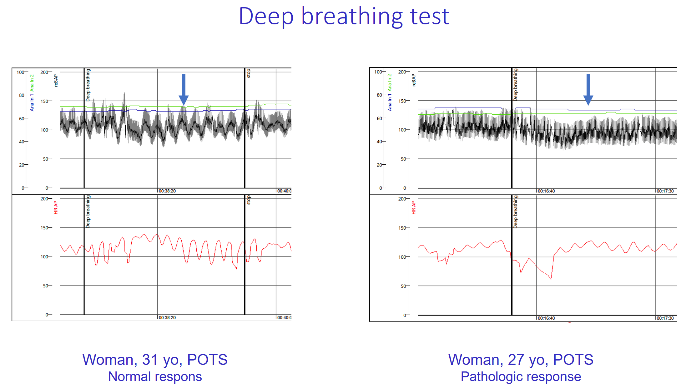 Examples of beat-to-beat blood pressure and ECG monitoring during a deep breathing test in 2 women with POTS.