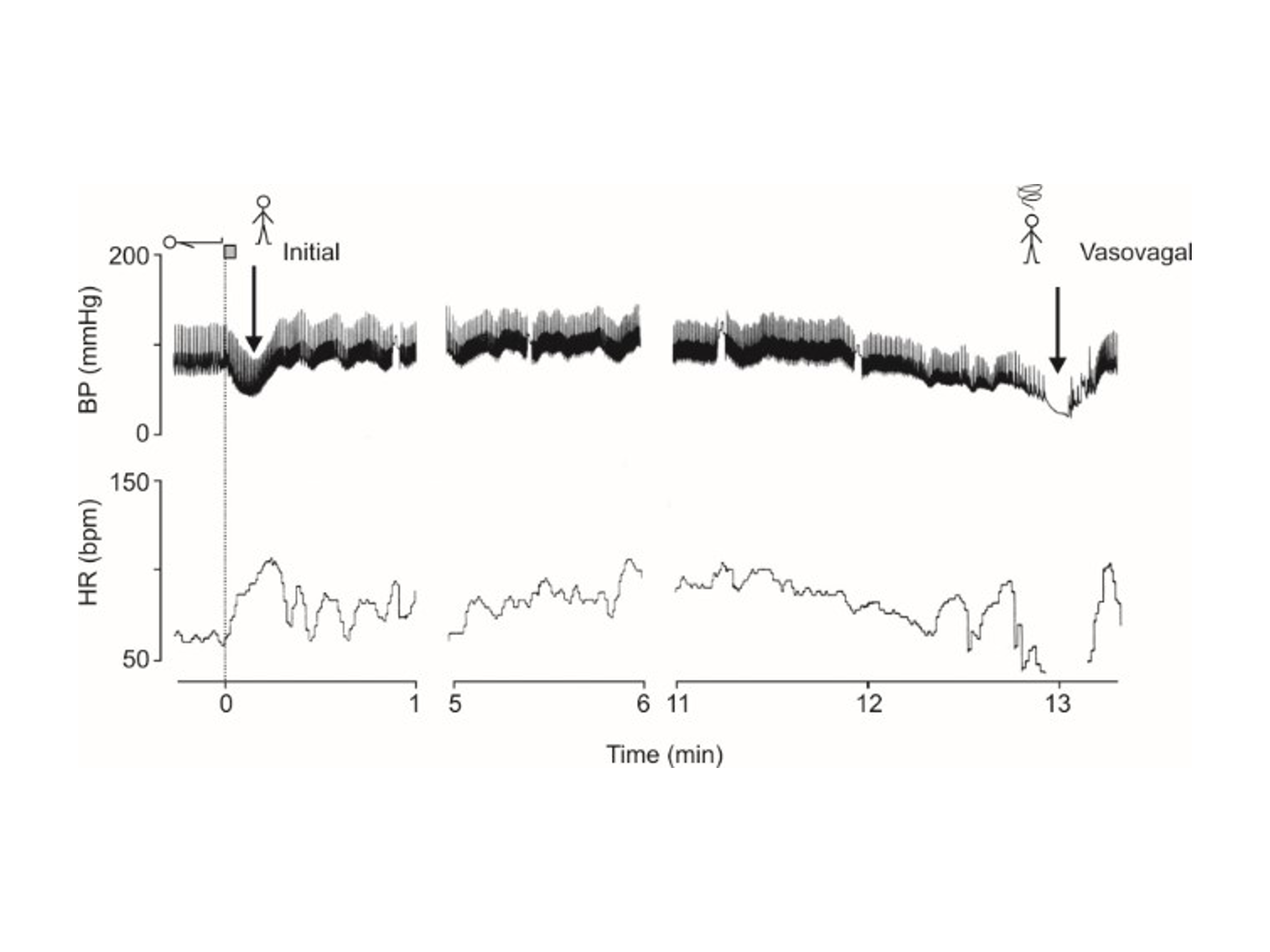 This figure shows the usefulness of a continuous tracing of finger arterial pressure (BP) and heart rate (HR) during cardiovascular reflex testing in a patient with vasovagal syncope.